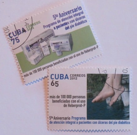 Cuban postage stamps touting the country's efforts to save limbs of diabetics (Photo by Andrew Schneider)